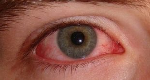 Rüyada göz ağrısı görmek